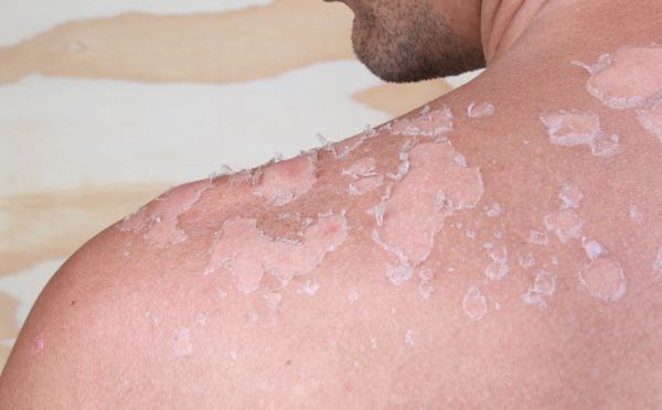 Skin Cancer Symptoms Types And More Index Of Sciences