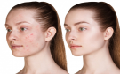 List of Foods That Can Cause Acne
