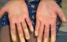 Connective Tissue Diseases: Types, Diagnosis, Symptoms