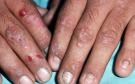 Porphyria – Symptoms, causes, diagnosis, and Treatment