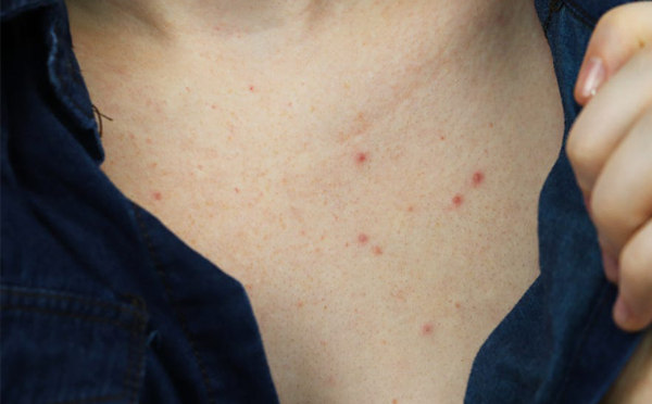 Chest Acne : Best ways to get rid of it