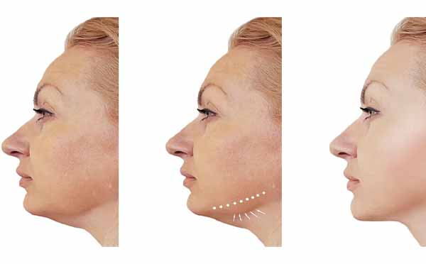 How To Prevent Jowls And Its Causes
