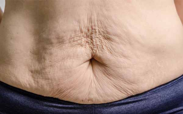 10 Ways to Tighten Loose Skin After Losing Weight
