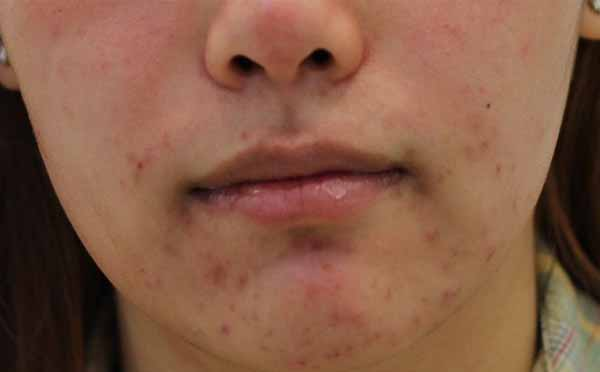 Acne Around the Mouth: Causes, Treatment, and Prevention