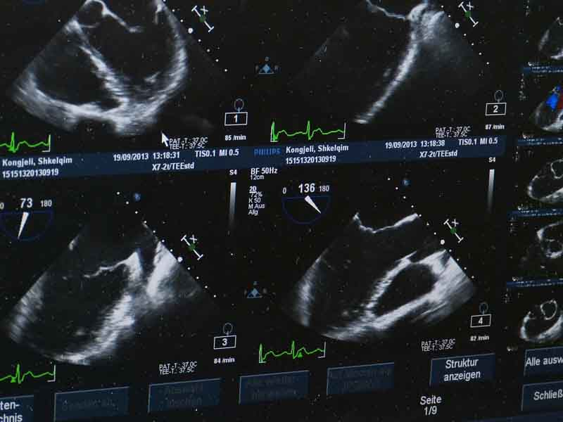 Other kinds of ultrasounds